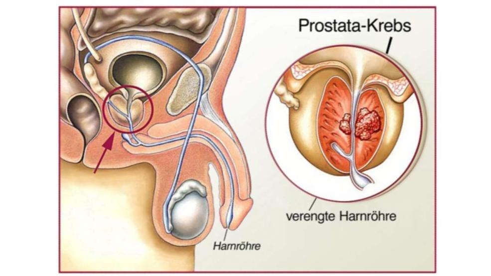 prostata befriedigung